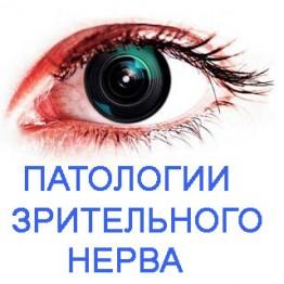 Набор флуревитов при патологии зрительного нерва